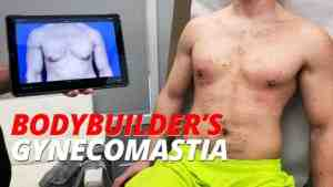 bodybuilder's gynecomastia treated at the austin gynecomastia center